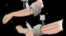 Cardioprotezione Formignana: check up cardiovascolare per la prevenzione da ictus e arresto cardiaco