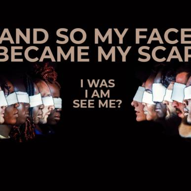 AND SO MY FACE BECAME MY SCAR – SEE ME?
